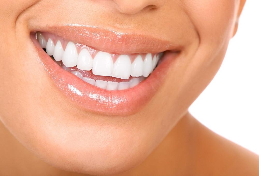Carillas dentales estéticas Querétaro