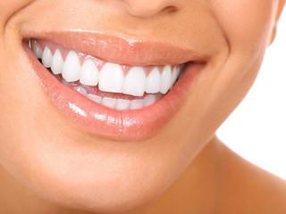 Dientes de Artista | ¿Por qué los artistas tienen sus dientes tan blancos y alineados?