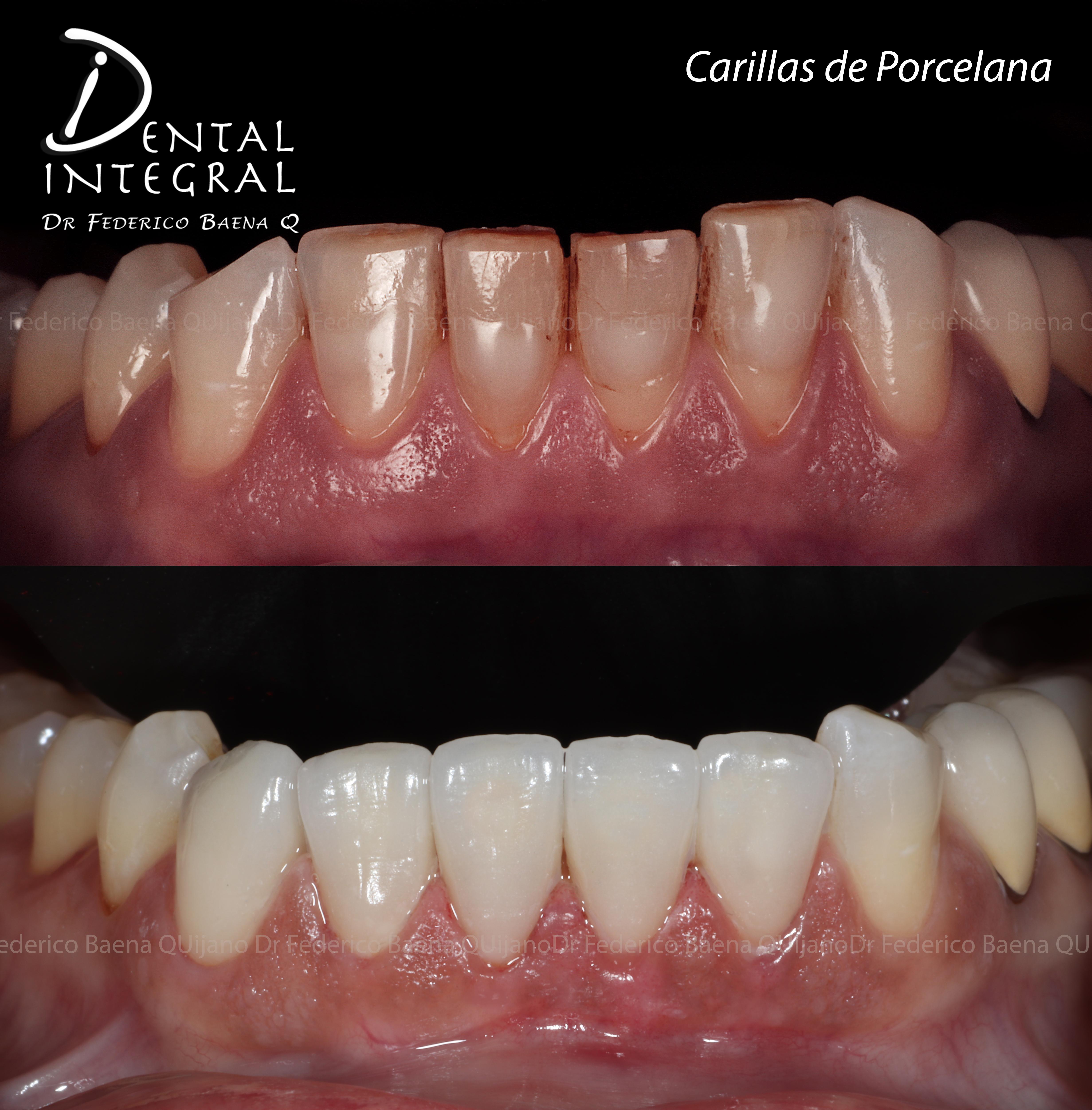 Carillas dentales esteticas queretaro