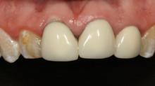 Carillas y Coronas Dentales, un tratamiento de especialidad.