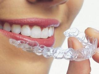 ¿Ortodoncia sin braquets?