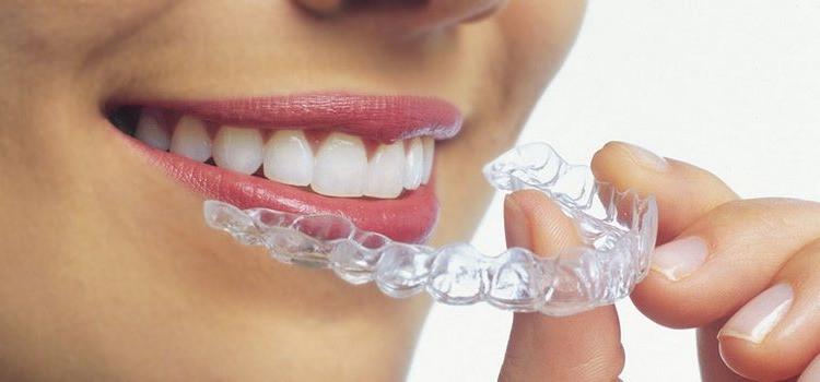 Ortodoncia sin braquets