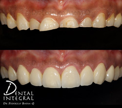Rehabilitación Dental completa