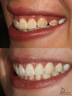 Blanqueamiento Dental y Alargamiento