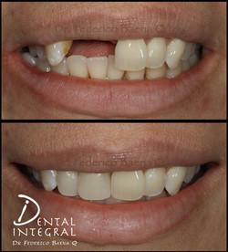 Implantes dentales Queretaro