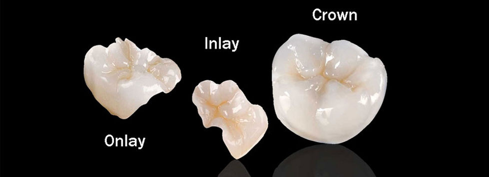 Corona, Inlay y Onlay Dental en Queretaro