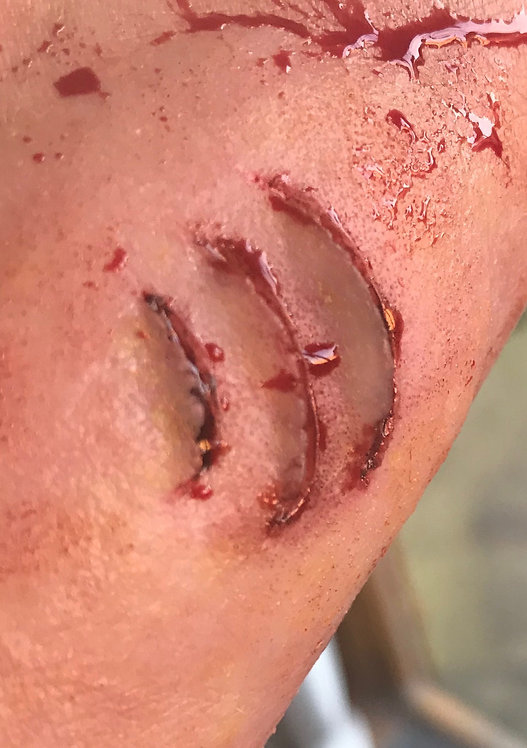 Gills or triple cut wound silicone prosthetic