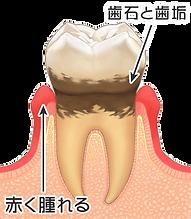 歯周病2.png