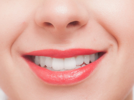 何が違う?保険治療と自費治療の白い歯