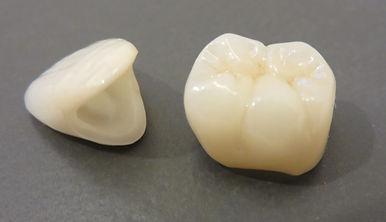 セラミックの前歯と奥歯.jpg