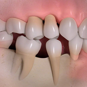 欠損部への歯の移動.jpg