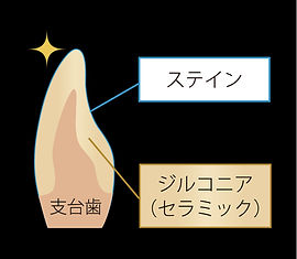 Zr-stain構成.jpg