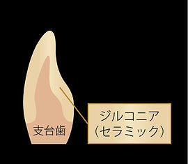 Zr-nonstain構成.jpg