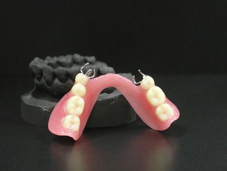 その入れ歯、本当にあっていますか!?