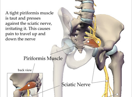 Sciatica vs. Piriformis Syndrome - By Nicola Grice, RMT