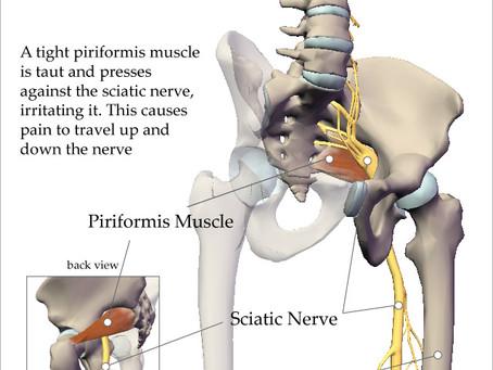 Sciatica vs. Piriformis Syndrome - By Nicola Grice, RMT