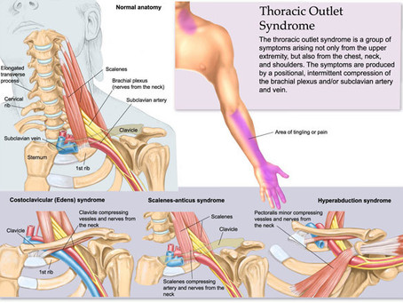 Thoracic Outlet Syndrome - Symptoms, Causes and Treatment By Heather Muir RMT