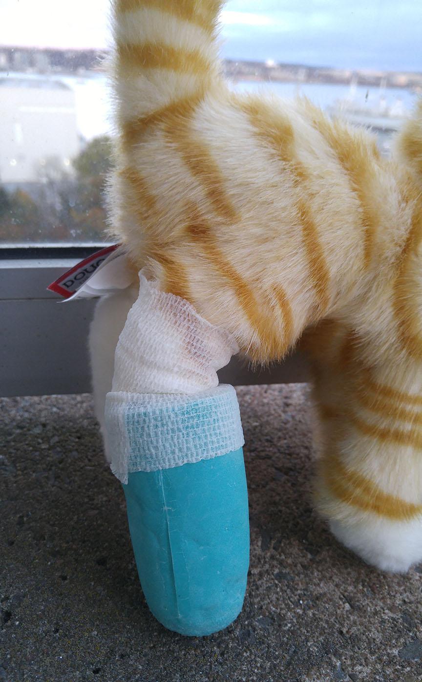 Prosthetic Leg Close Up
