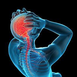 migraine-466px-opt-1.jpg