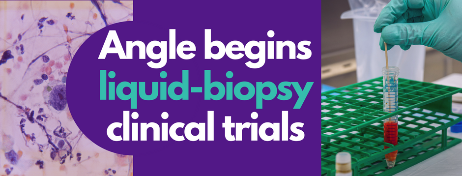 Angle begins liquid-biopsy Clinical Trials