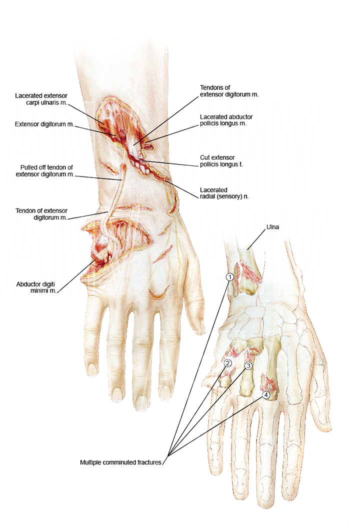 Structures Affected in Hand Injury