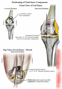 Incorrect Knee Joint Replacement