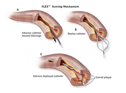 Stages of Catheter Deployment