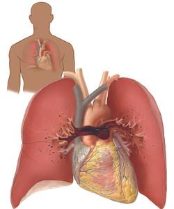 Pulmonary Embolism - Saddle Emboli