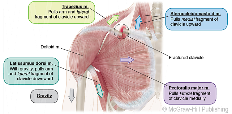 Muscle Forces Acting On Shoulder After Mid-Clavicular Fracture