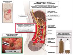 Peritoneal Cavity & Its Contents