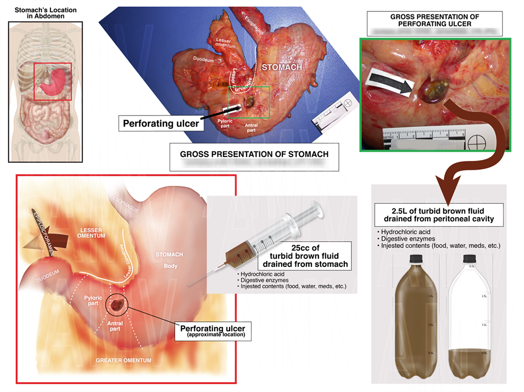 Stomach Ulcer Location and Amount of Spilled Contents
