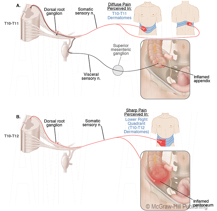 Referred Pain Pathways in an Appendicitis