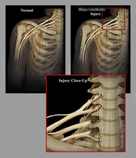 Normal Vs. Torn Nerves of the Cervical Plexus