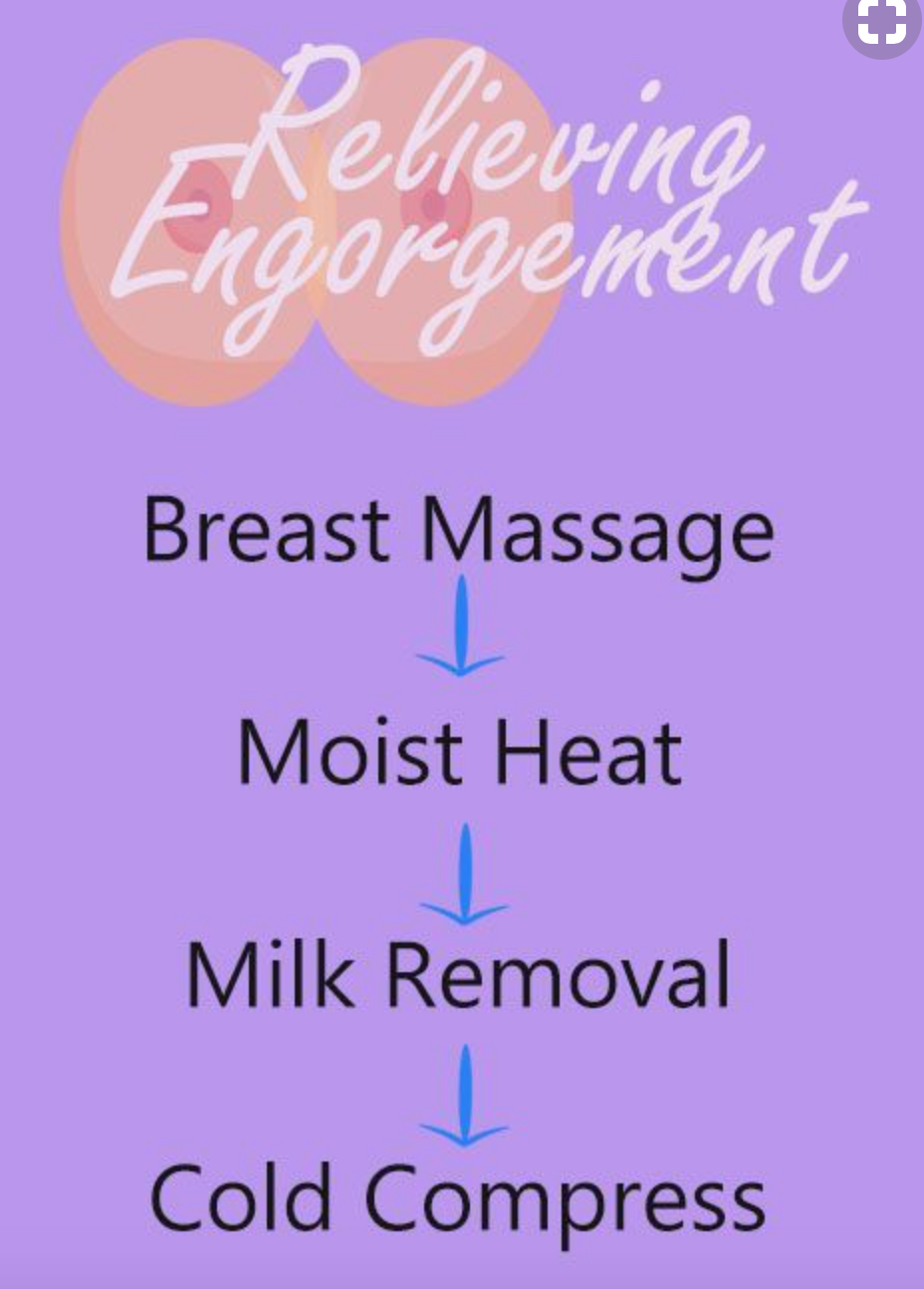 how to relieve engorgement when breastfeeding challenges newborn postpartum new mom