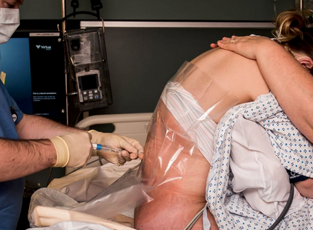 What are the benefits and risks of Epidurals? Explore pros & cons of epidurals and alternatives