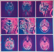 MRI Print.jpeg
