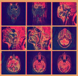 MRI Print Pink:Blue on Orange.png