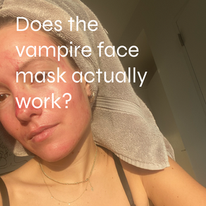 """Does the """"vampire"""" face mask actually work?"""
