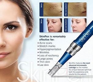 skin pen informational.jpg