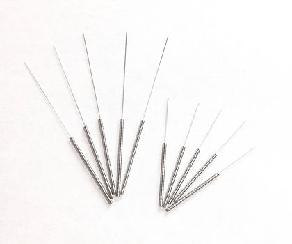 """<img src=""""acupuncture.jpg"""" alt=""""acupuncture needles used to relieve pain"""">"""
