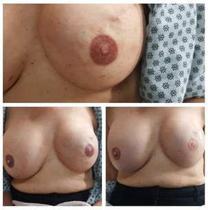 Post mastectomy photos shown with client
