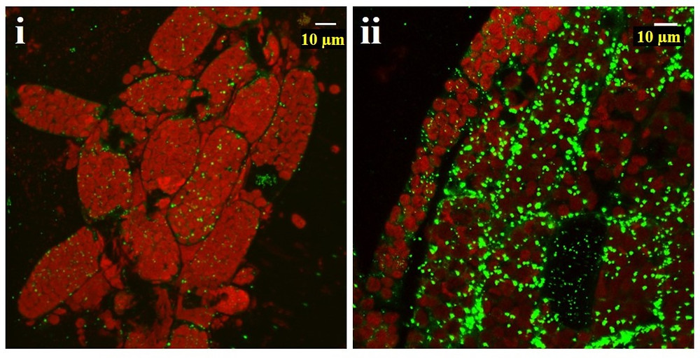 Microscopy images of WT protonema cells grown in for 10 days (i) and WT gametophytes grown for 6 weeks (ii). Stained with BODIPY (green) and overlaid with chloroplast autofluorescence (red), showing the presence of cytosolic LDs.