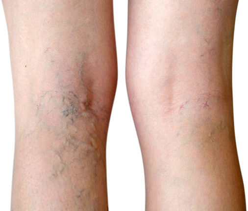 vein-therapy-varicose-vein-treatment-spi