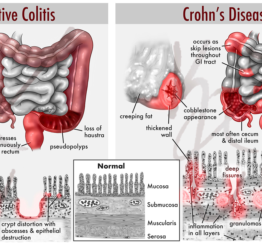 ulc colitis vs crohns with watermark red