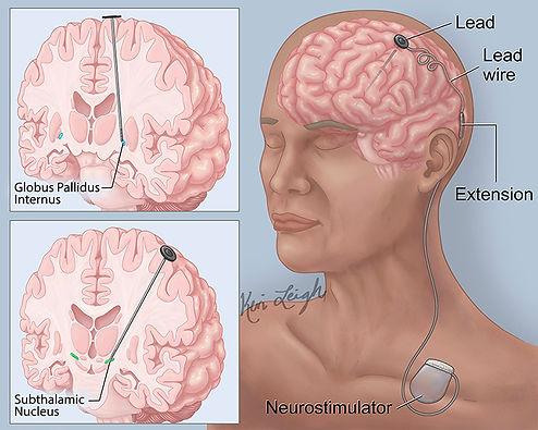 deep brain stimulation for Parkinson's disease