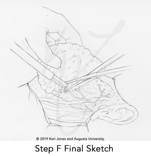 parotid final sketches006.jpg