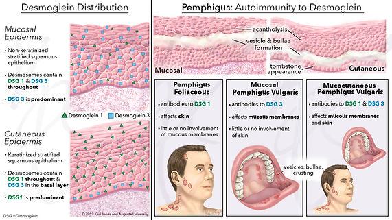 pemphigus 3-30.jpg