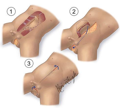 Vertical rectus abdominis myocutaneous flap