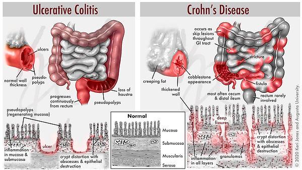 ulc colitis vs crohns 4-26.jpg