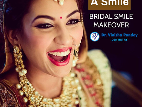 IS YOUR SMILE CAMERA READY FOR YOUR WEDDING?